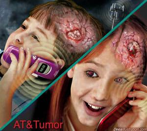 Evidence: Cell Phone Does Cause Cancer
